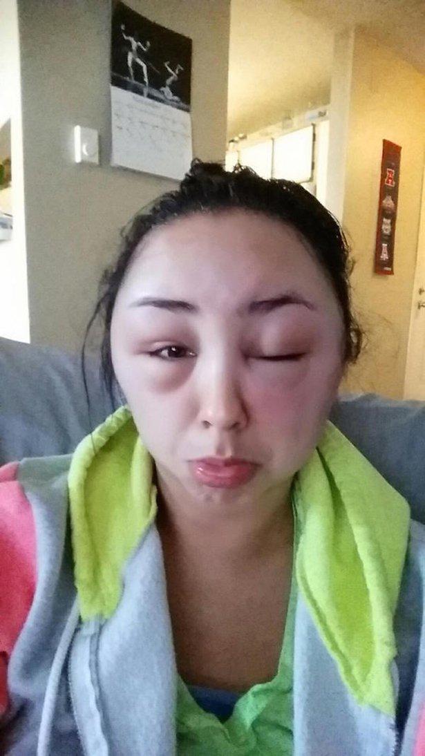 allergia 3