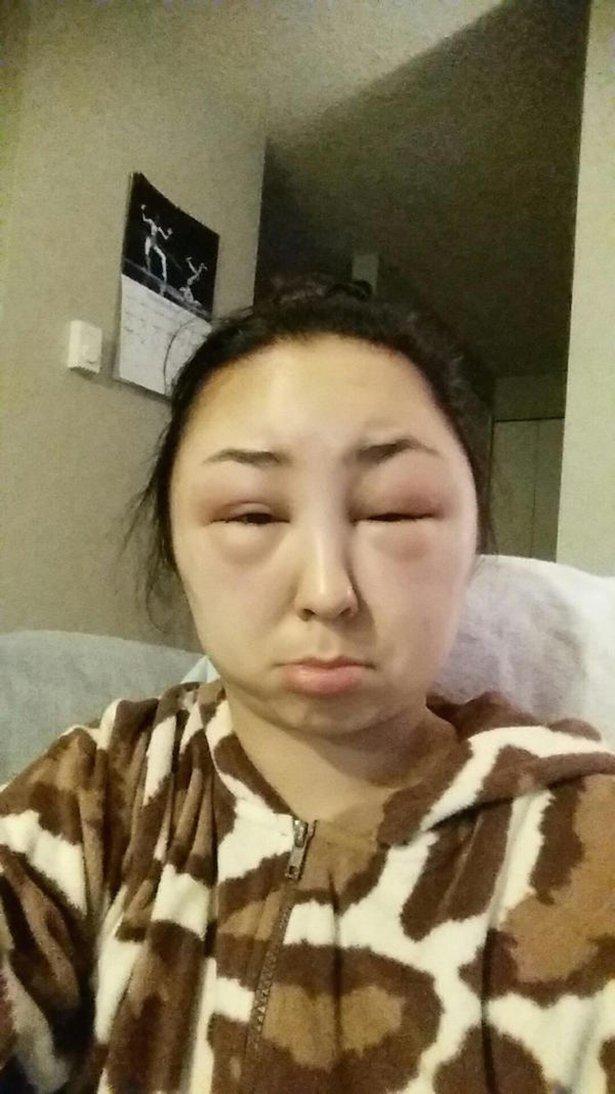allergia 6
