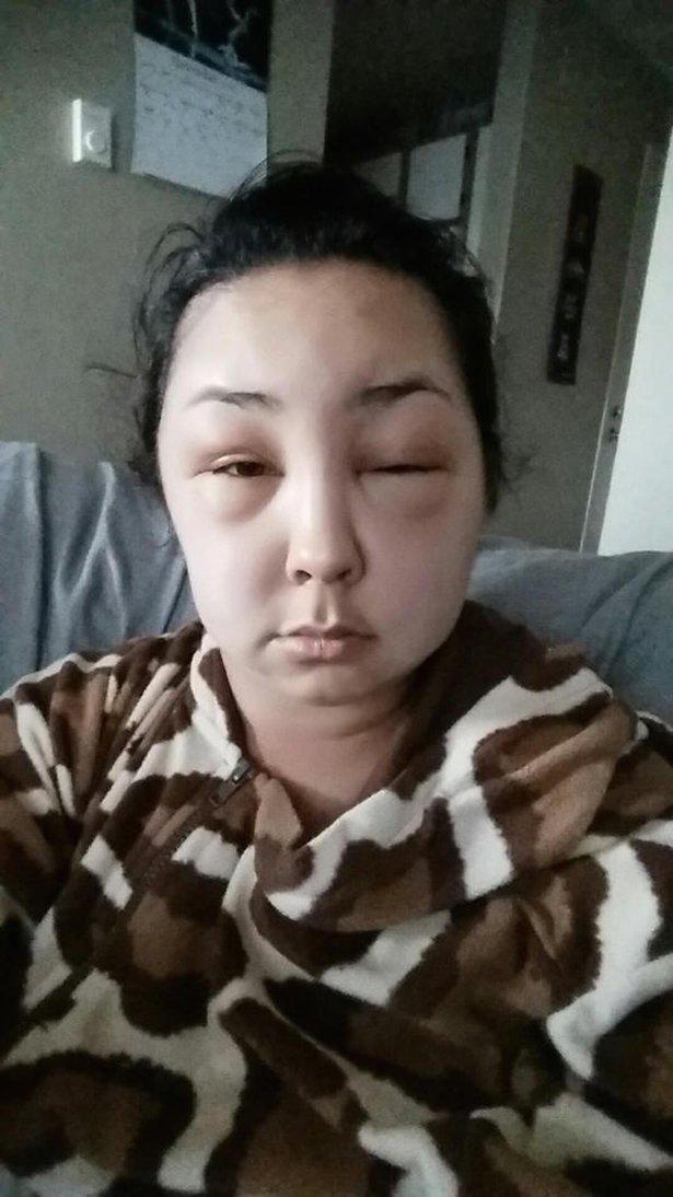 allergia 7