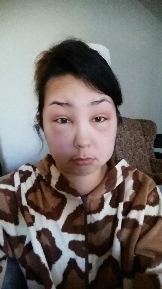 allergia 8